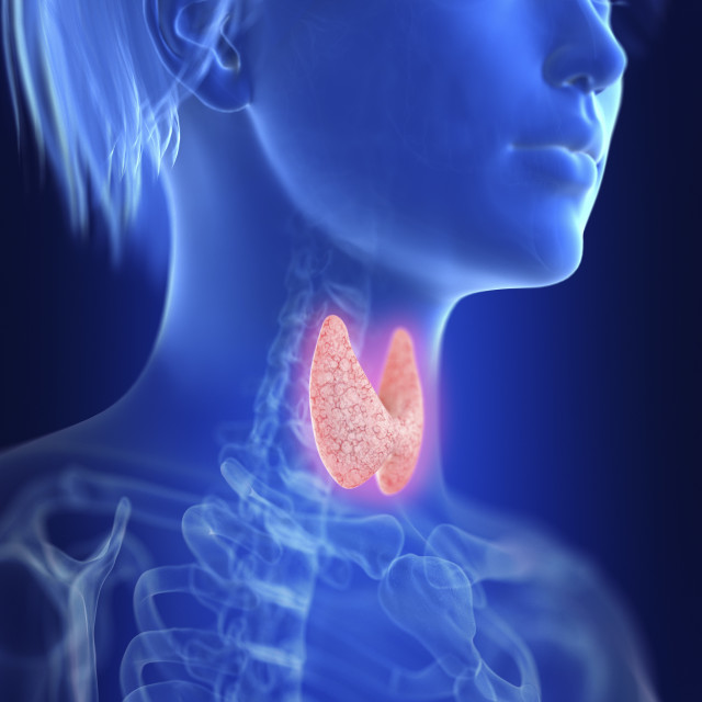 """""""Illustration of an inflamed thyroid"""" stock image"""