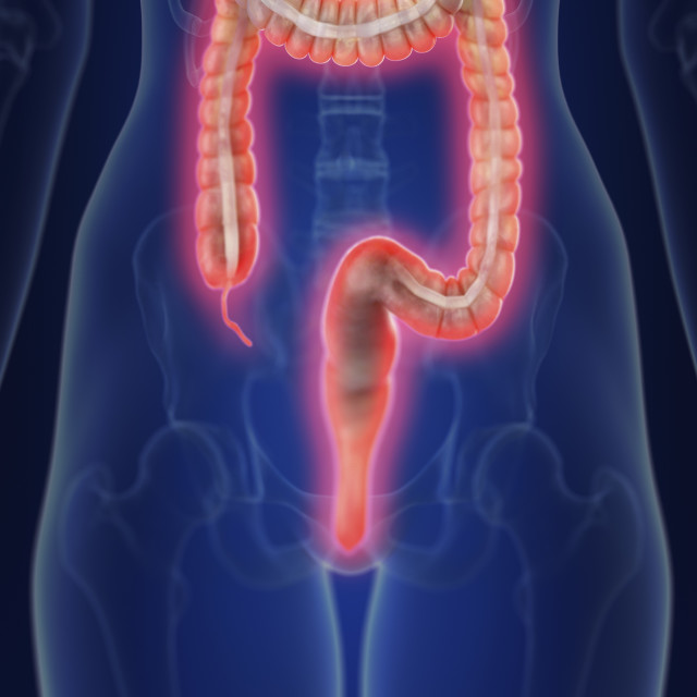 """""""Illustration of an inflamed colon"""" stock image"""