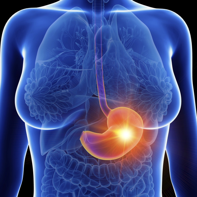 """""""Illustration of a woman's inflamed stomach"""" stock image"""