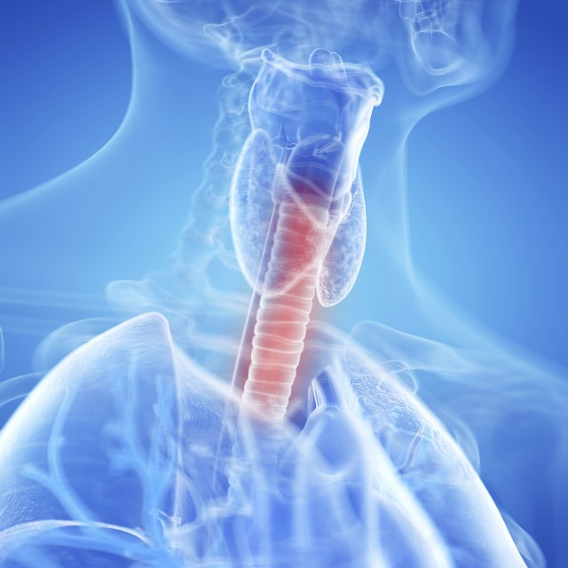 """""""Illustration of an inflamed trachea"""" stock image"""