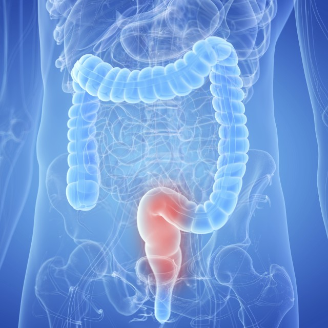 """""""Illustration of an inflamed rectum"""" stock image"""