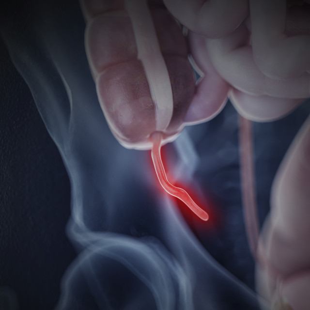 """""""Illustration of and inflamed appendix"""" stock image"""