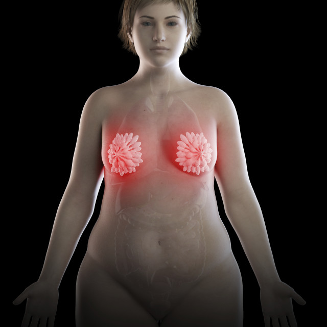"""""""Illustration of an obese woman's inflamed mammary glands"""" stock image"""