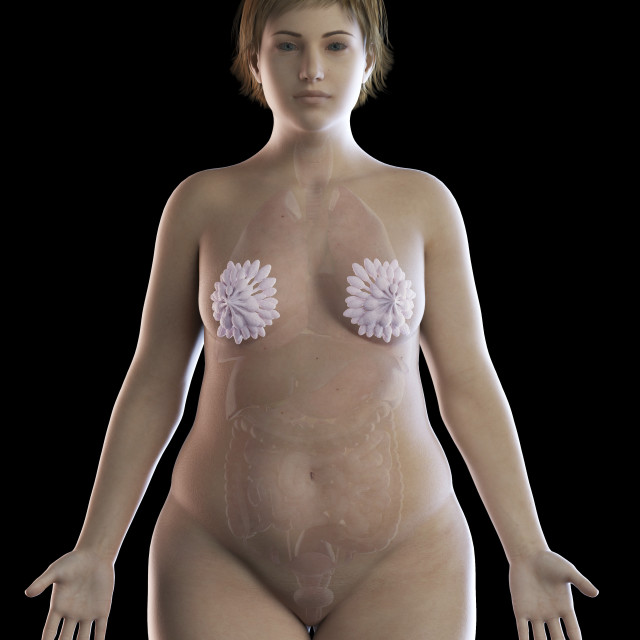 """""""Illustration of an obese woman's mammary glands"""" stock image"""