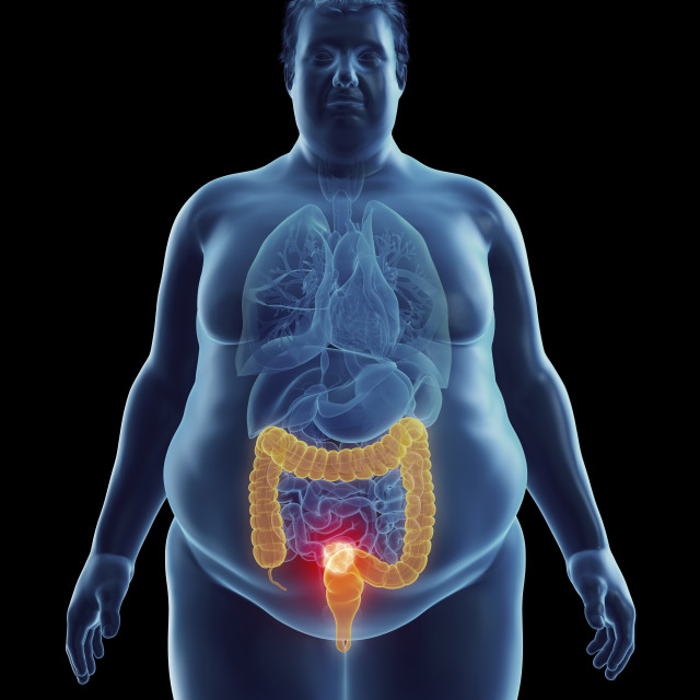 """""""Illustration of an obese man's colon tumor"""" stock image"""