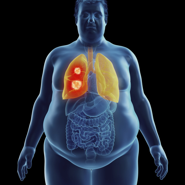 """""""Illustration of an obese man's lung tumor"""" stock image"""