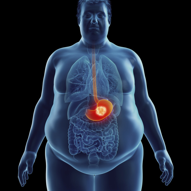 """""""Illustration of an obese man's stomach tumor"""" stock image"""