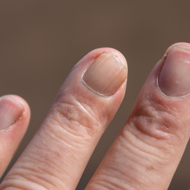 """Scar Tissue on Crushed Finger That has Healed"" stock image"