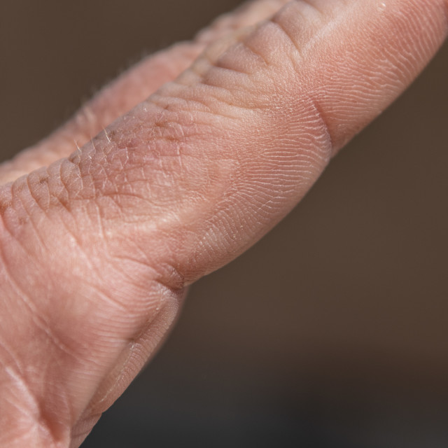 """Scar Tissue on Hand"" stock image"