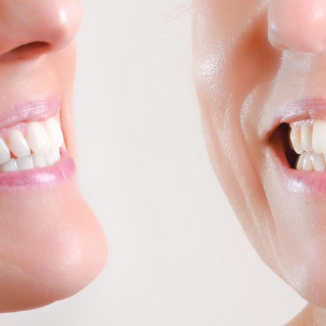 """Set of two views of natural dentition of caucasian woman"" stock image"