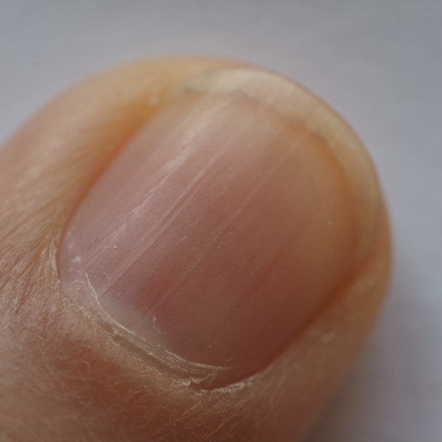 """""""male hand finger and nail"""" stock image"""