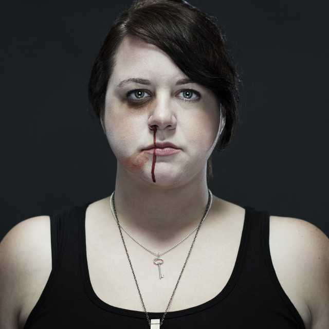 """Portrait of injured woman standing against black background"" stock image"