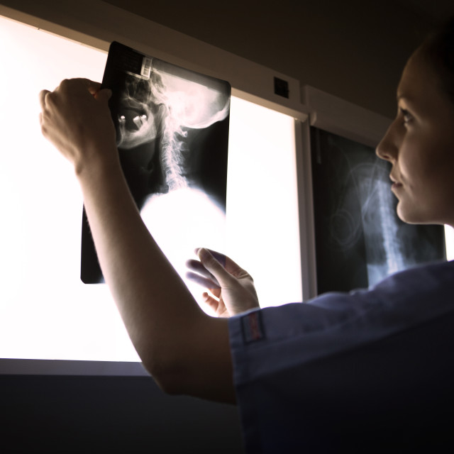 """""""Side view of woman examining neck x-ray on diagnostic medical tool"""" stock image"""