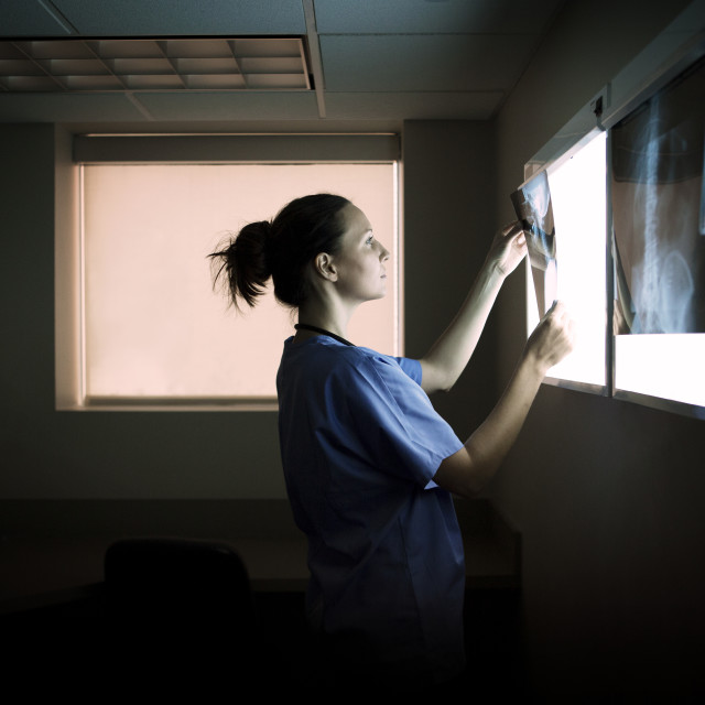 """""""Side view of doctor examining x-rays on diagnostic medical tool in hospital"""" stock image"""