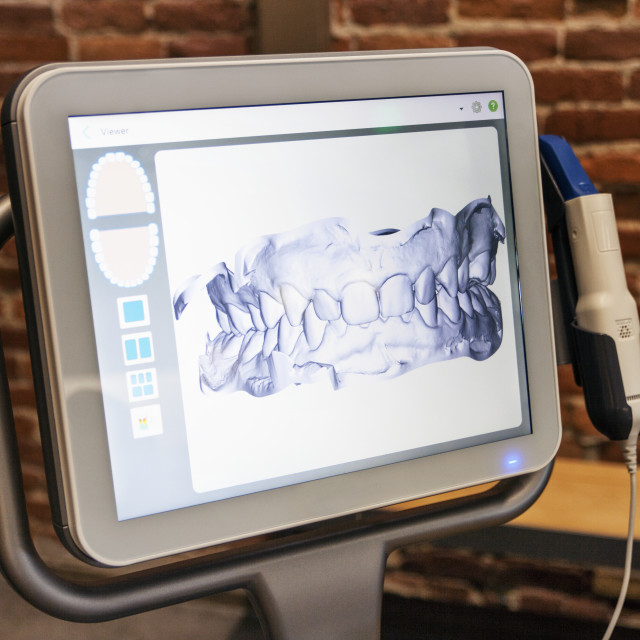 """Dental x-ray on computer screen in clinic"" stock image"