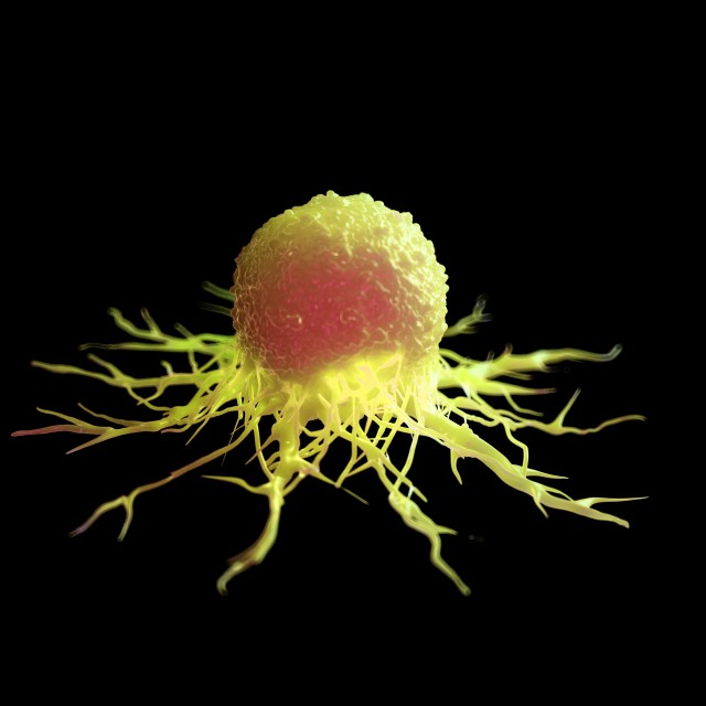 """Cancer cell, illustration"" stock image"