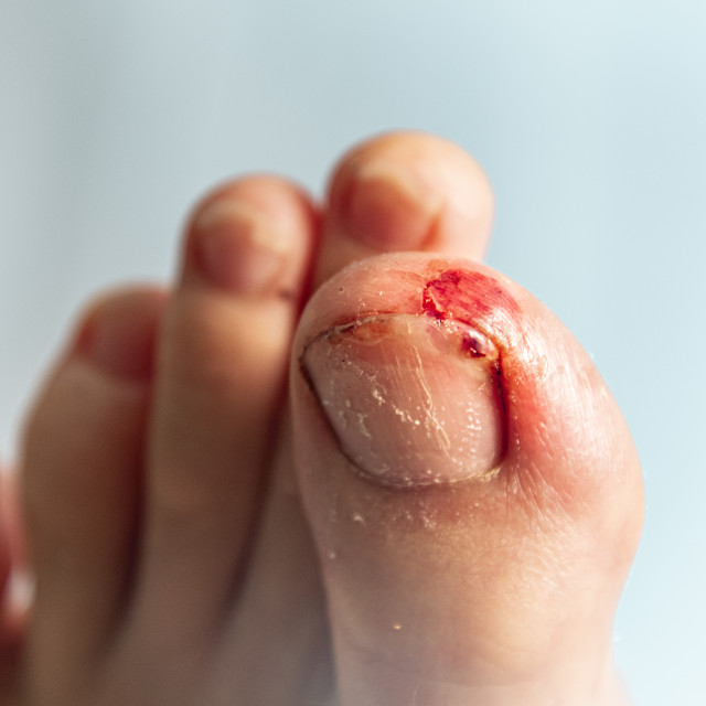 """Infected wound on stubbed toe"" stock image"