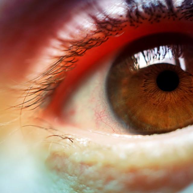 """rainbow on the eye, beautiful colors"" stock image"