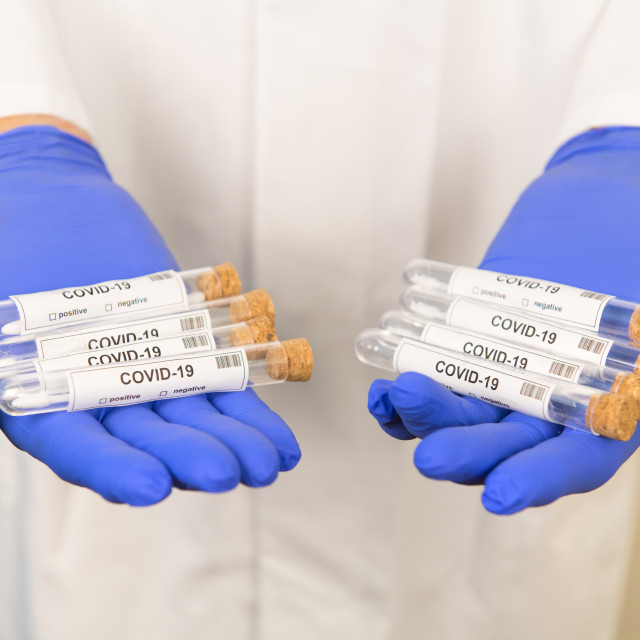 """""""Many covid-19 tests"""" stock image"""