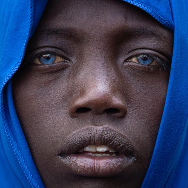 """""""The blue-eyed Ethiopian"""" stock image"""
