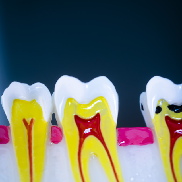 """Dental tooth model showing teeth decay, gums and root canal."" stock image"