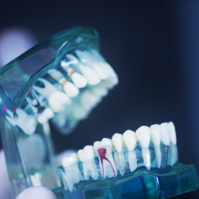 """Tooth decay dental model"" stock image"