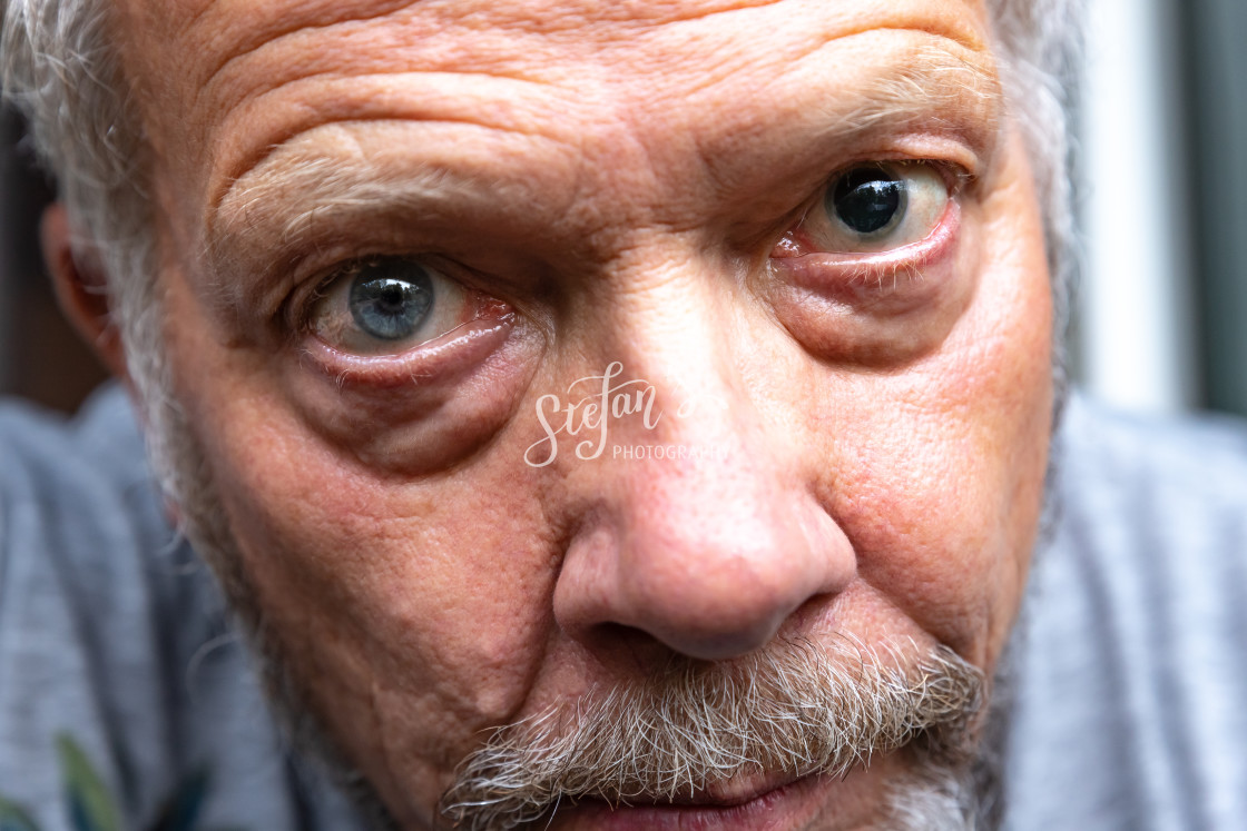"""Eye surgery"" stock image"