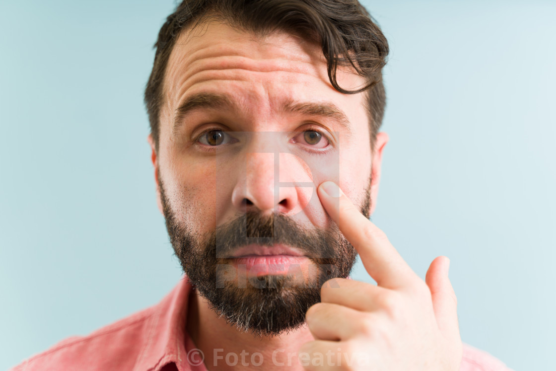 """""""Sad man in his 30s with an allergic reaction"""" stock image"""