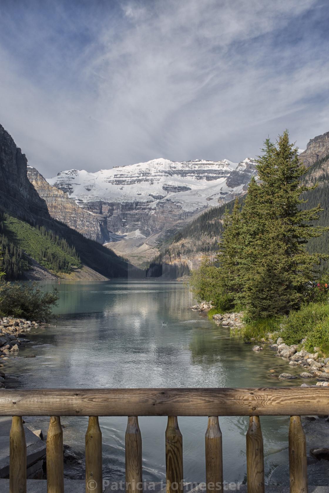 """""""Lake Louise view"""" stock image"""