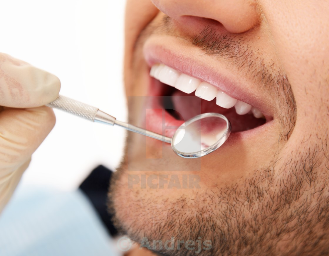 """Man doing teeth checkup at dentist's surgery"" stock image"