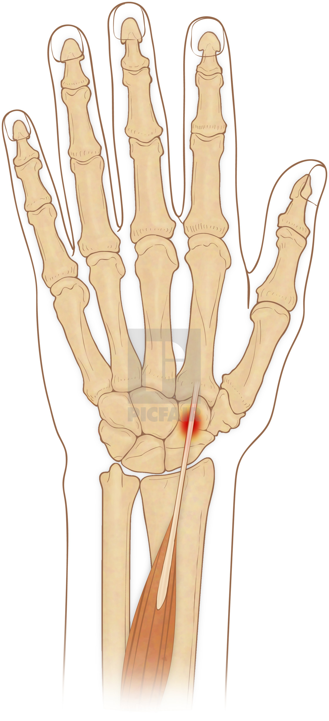 anterior view of hand bones with inflammed extensor carpi radialis