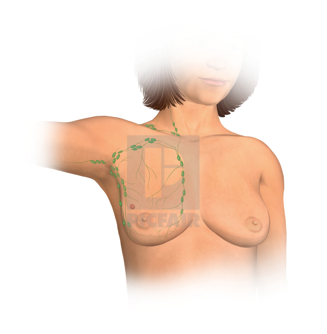 Anterior View Female Anatomy Showing Breast Tissue With A Tumor