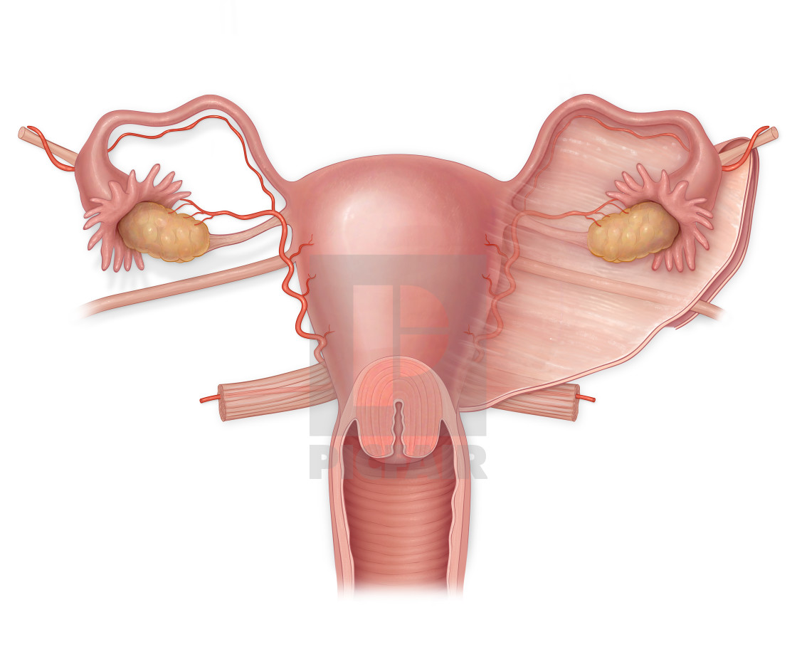 Anterior View Of A Normal Uterus With Ovaries Fallopian Tubes And