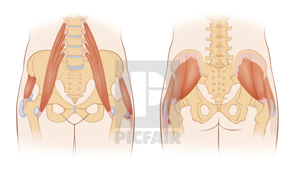 snapping hip syndrome occurs when the iliopsoas tendon subluxes over the