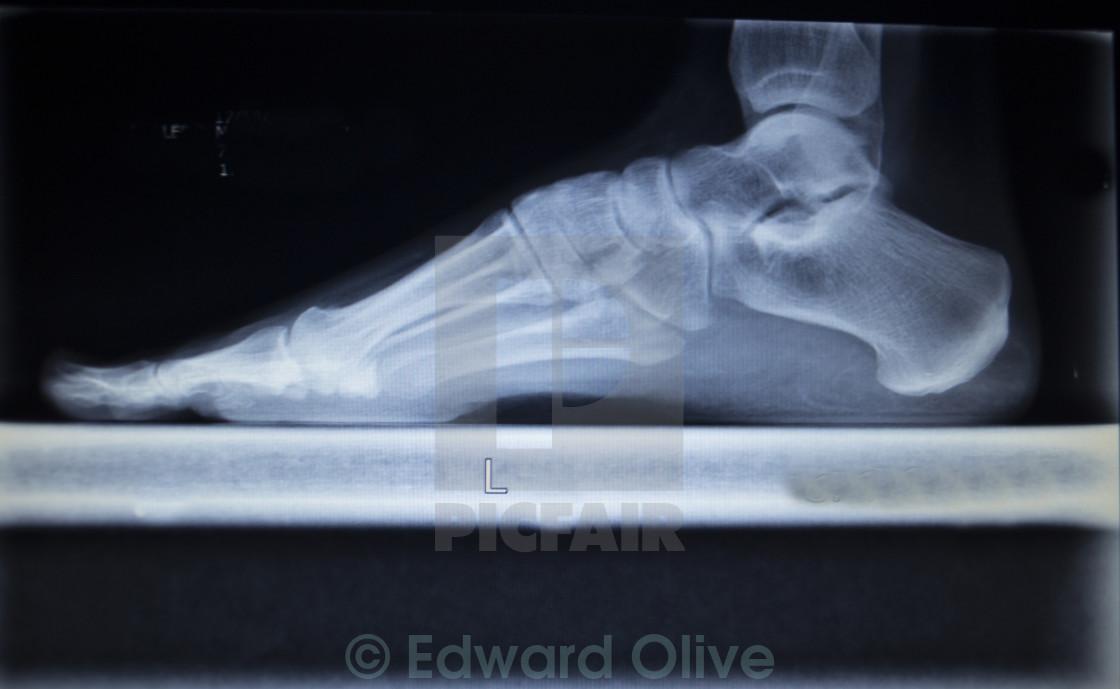 X Ray Orthopedics Scan Of Foot Injury Load Weight Bearing License