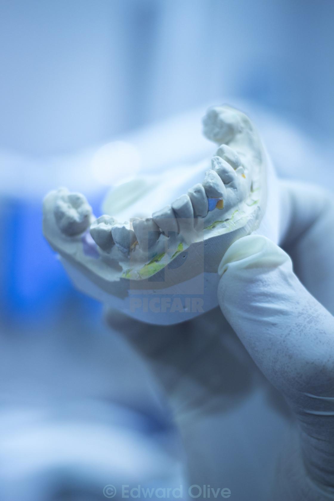 Dental mold dentist clay teeth ceramic plate model cast - License