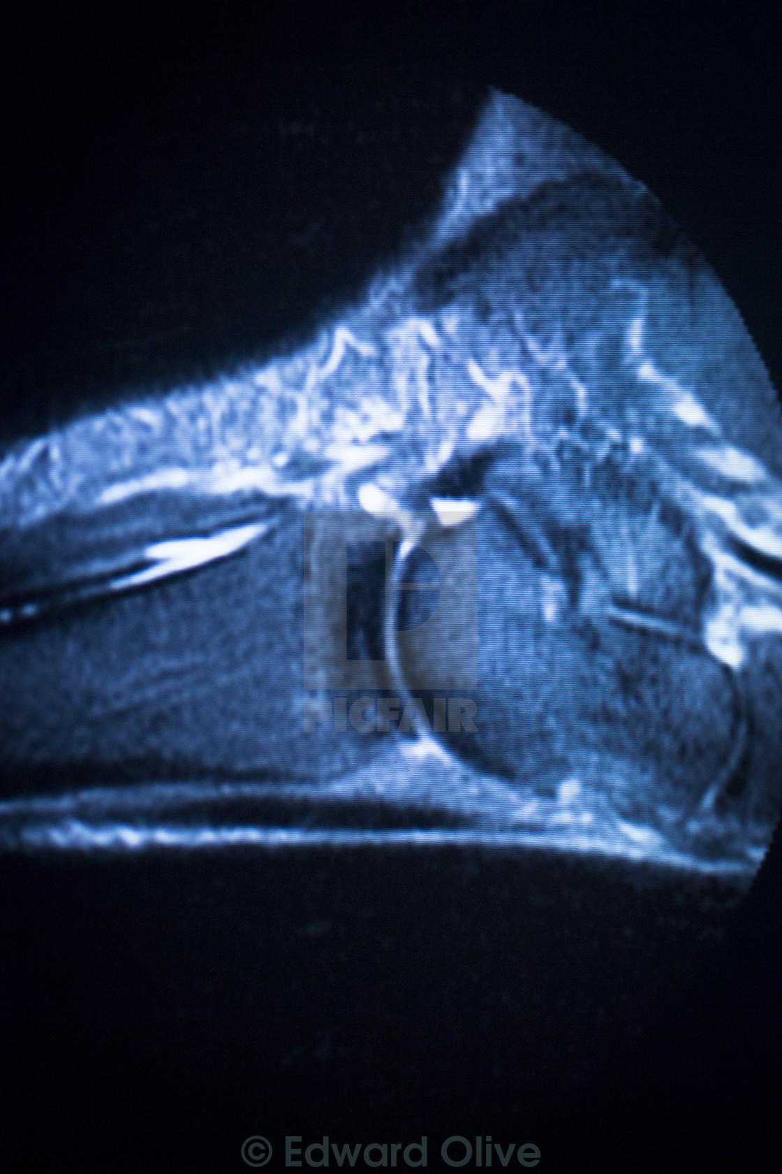 MRI magnetic resonance imaging ankle scan - License for £12.39 on ...
