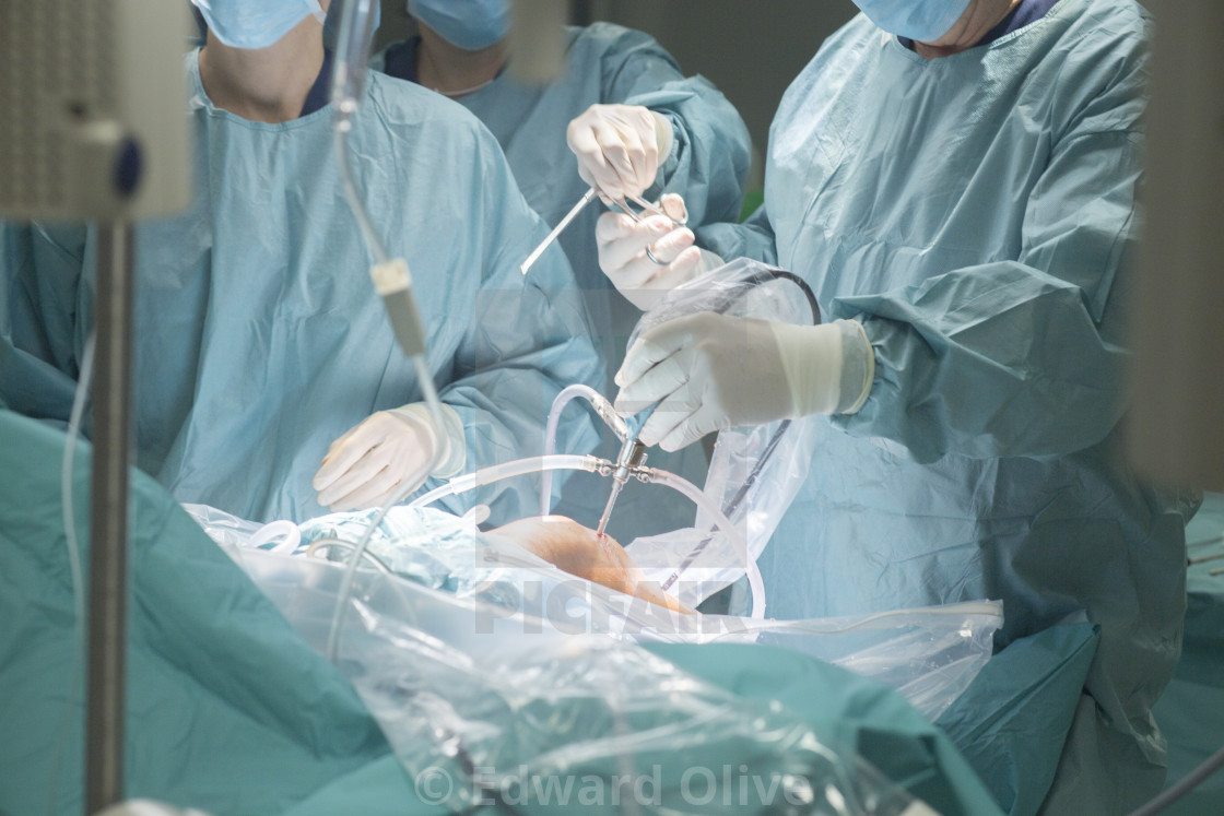 """Knee surgery hospital operation"" stock image"