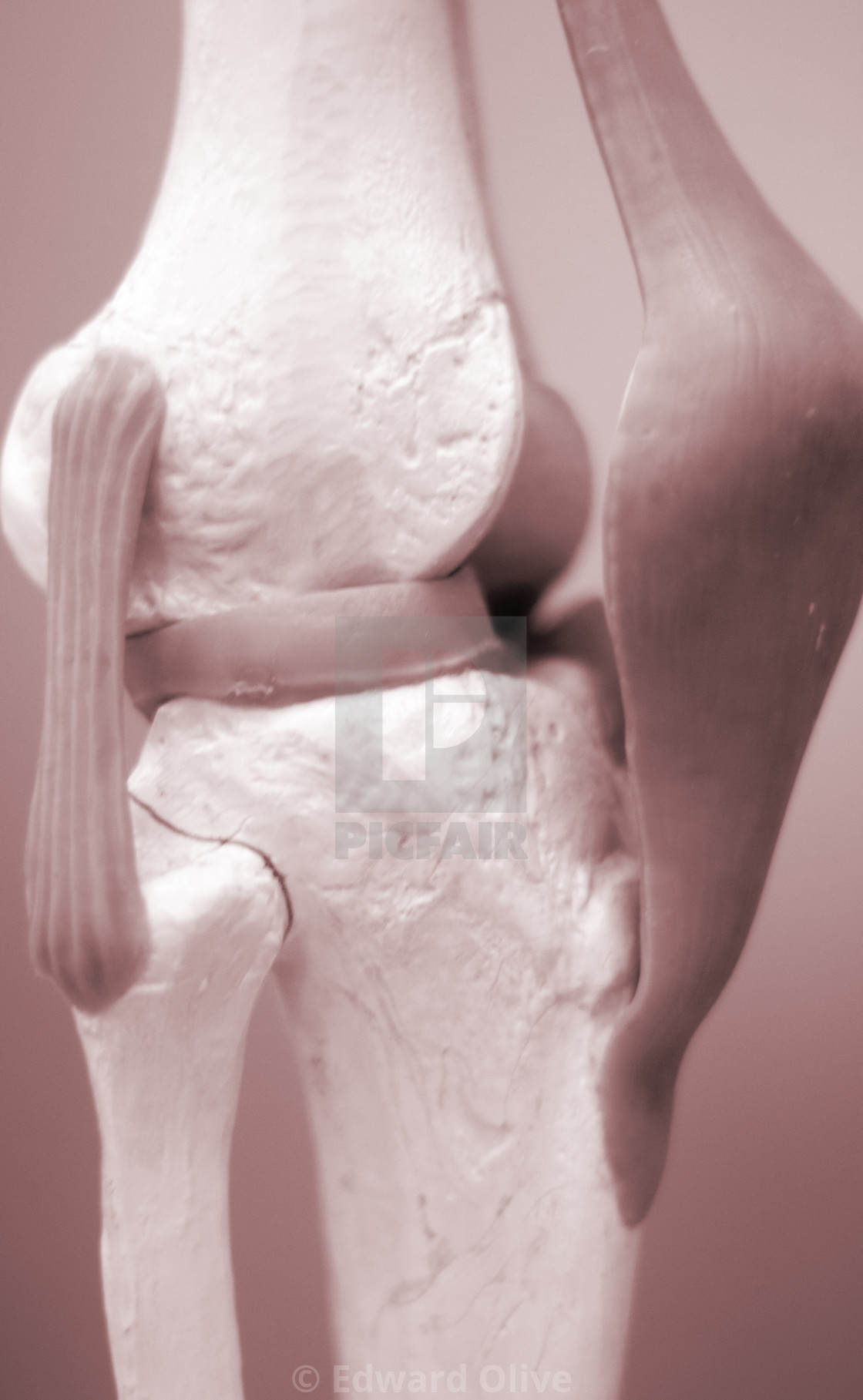 """Knee meniscus medical model"" stock image"