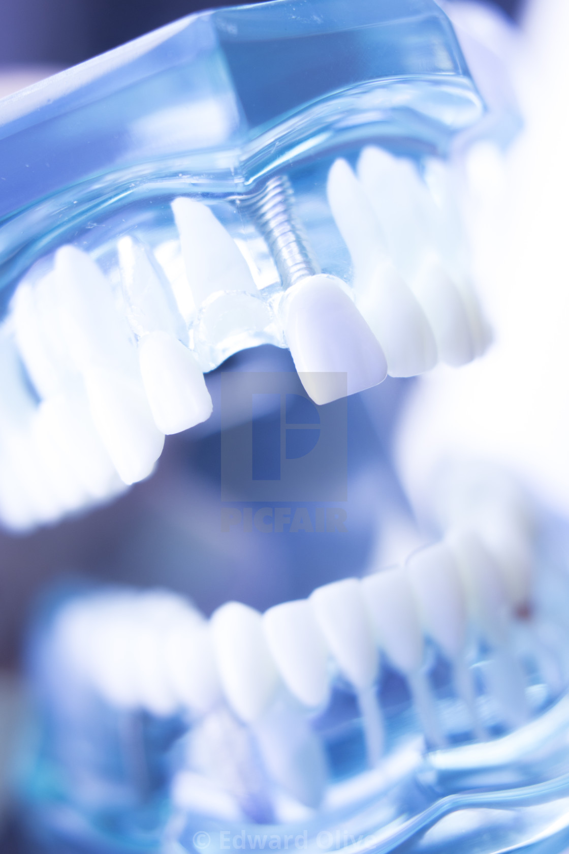 """Dentsts dental teeth model"" stock image"