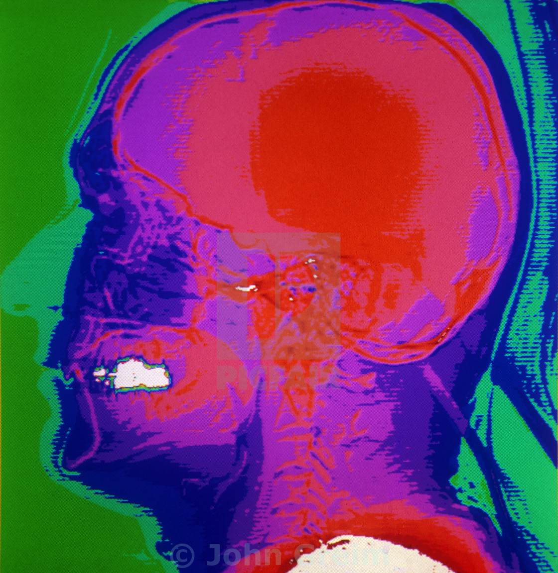 """""""Color CAT scan of the lateral skull."""" stock image"""