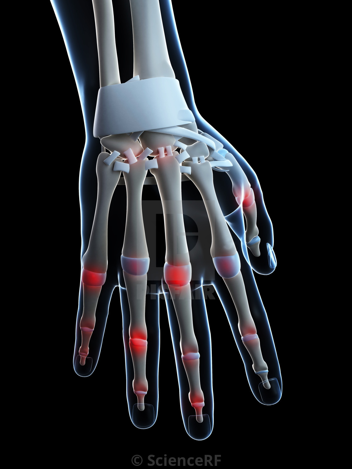 Human finger joints, artwork - License, download or print for £31.45 |  Photos | Picfair