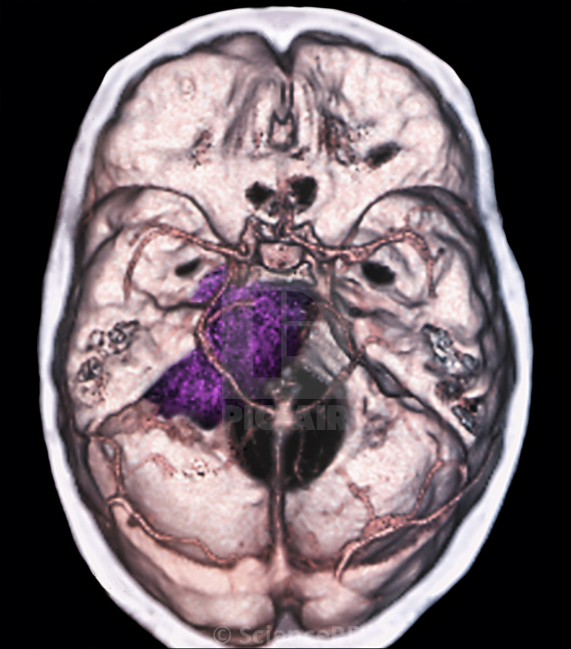 Benign brain tumour, CT scan - License for £39.00 on Picfair
