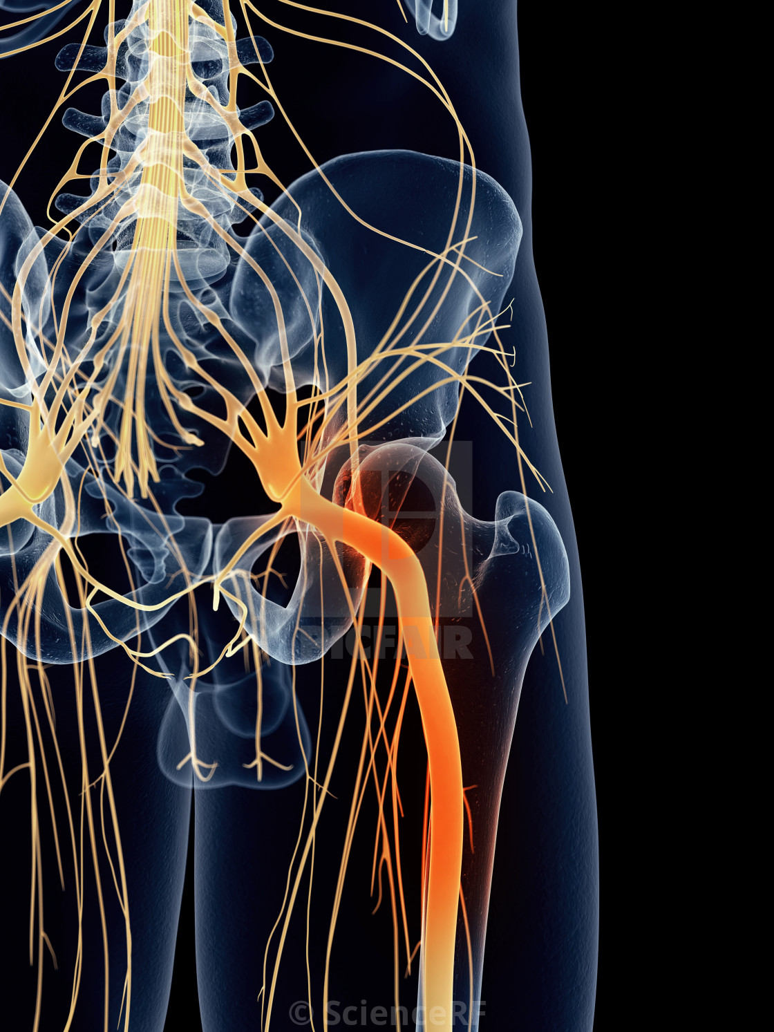 Sciatic Nerve Pain License Download Or Print For 3900 Photos