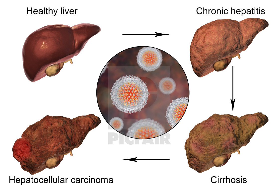 liver disease hepatitis c essay Read this essay on cirrhosis one of these is autoimmune hepatitis, a liver disease found the most common causes of cirrhosis are hepatitis c, fatty liver.