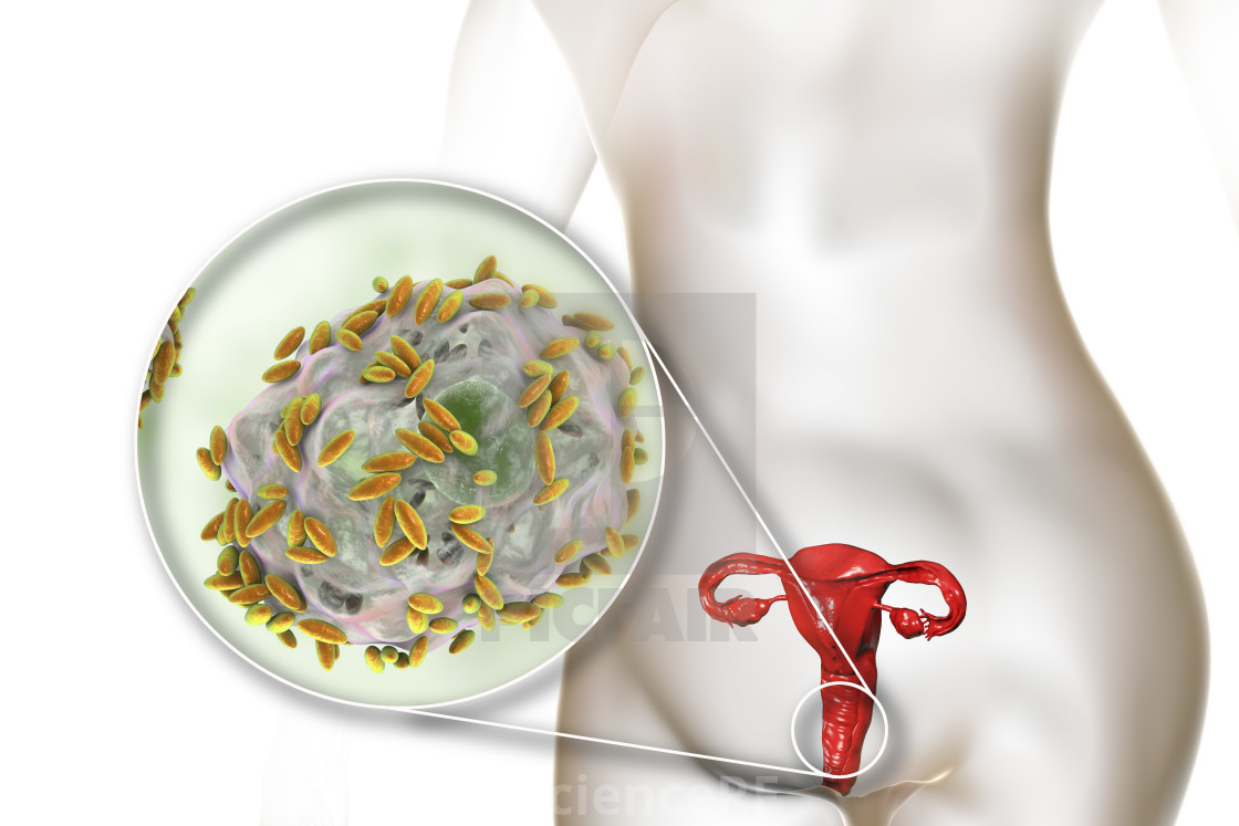 Correlation analysis of bacterial vaginosis and hygiene practices among pregnant women