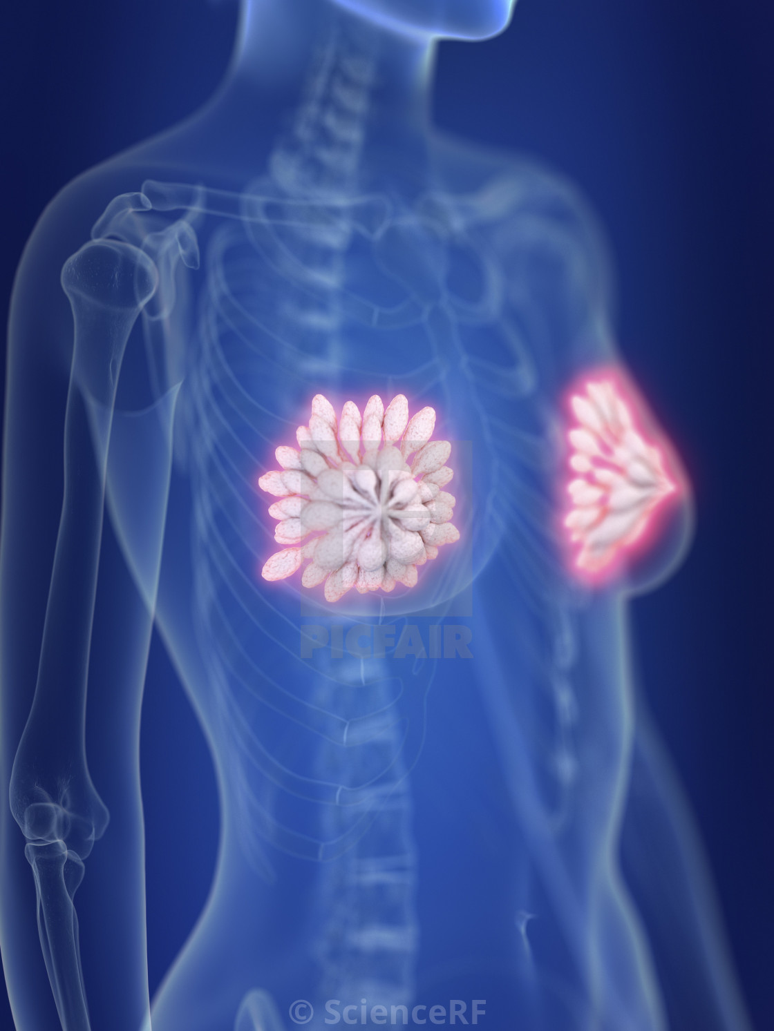 """""""Illustration of inflamed mammary glands"""" stock image"""