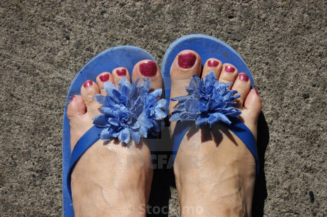 Are painted toenails and flip flops