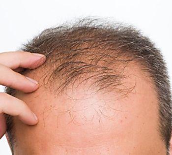 Hair Treatment for Men