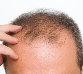 Hair Treatment for Men